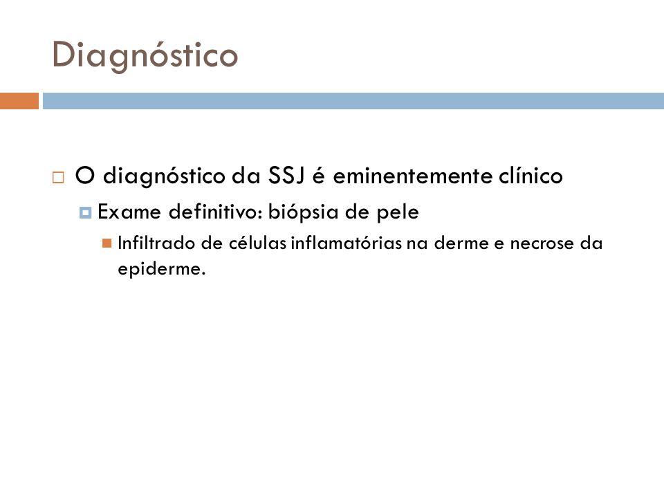 Diagnóstico O diagnóstico da SSJ é eminentemente clínico