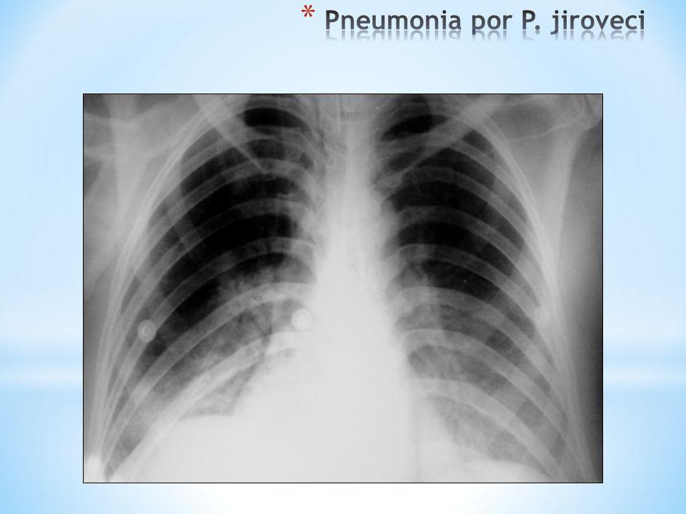 Pneumonia por P. jiroveci