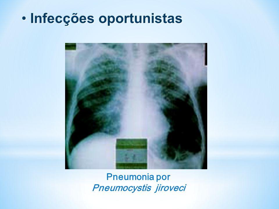Pneumonia por Pneumocystis jiroveci