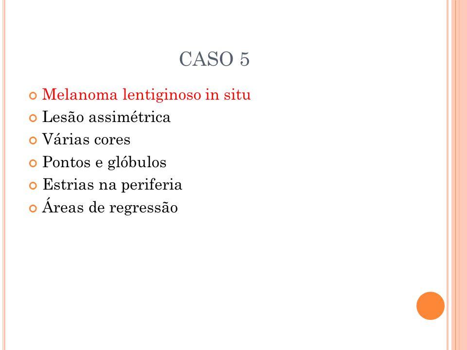 CASO 5 Melanoma lentiginoso in situ Lesão assimétrica Várias cores