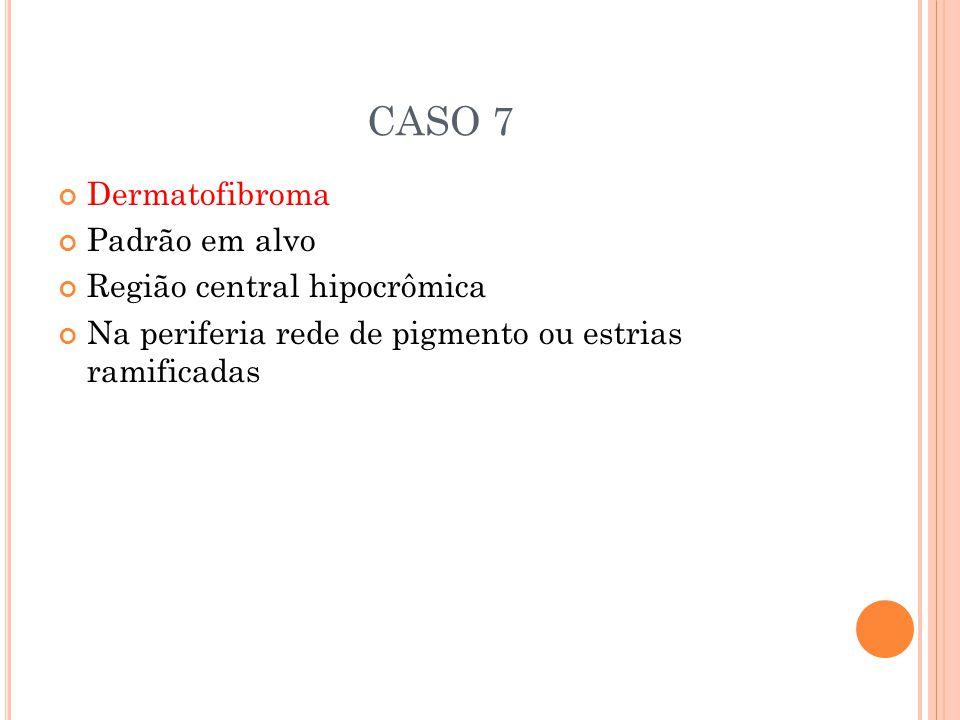CASO 7 Dermatofibroma Padrão em alvo Região central hipocrômica