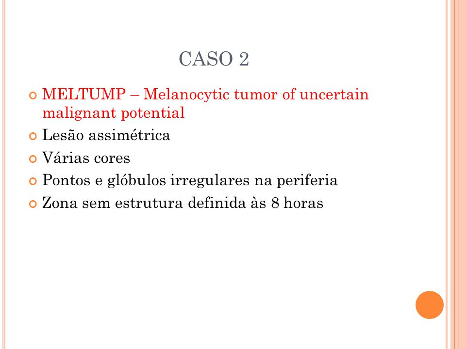 CASO 2 MELTUMP – Melanocytic tumor of uncertain malignant potential