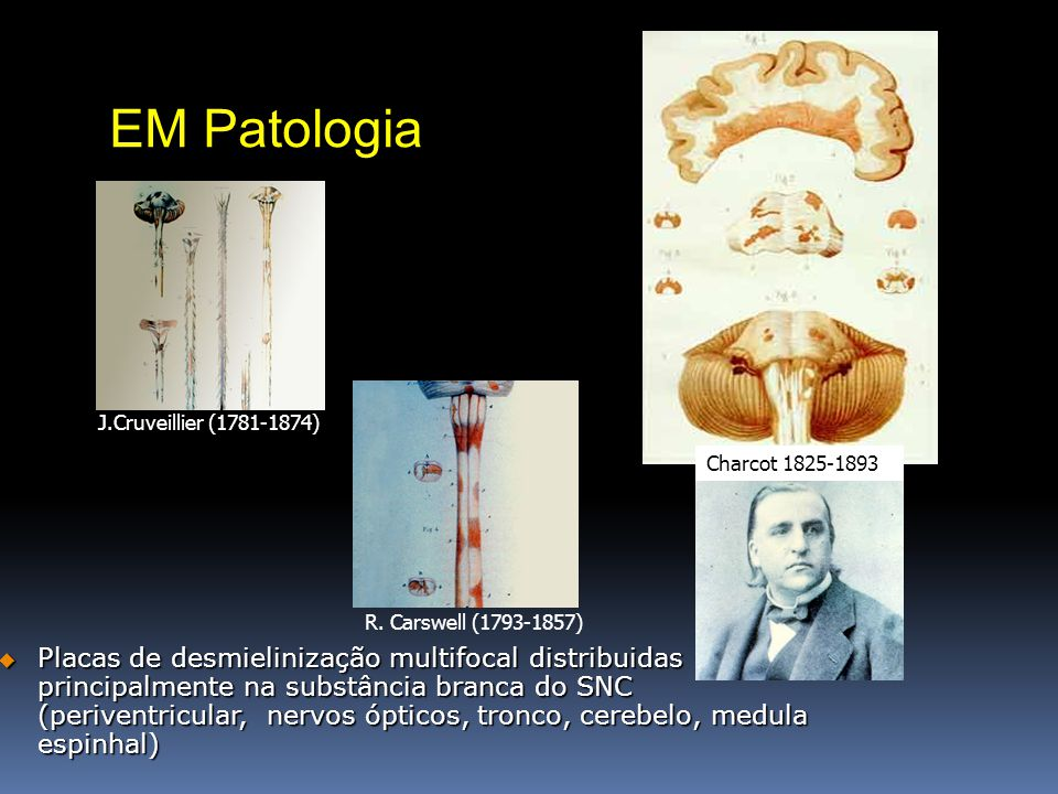 EM Patologia J.Cruveillier (1781-1874) Charcot 1825-1893. R. Carswell (1793-1857)