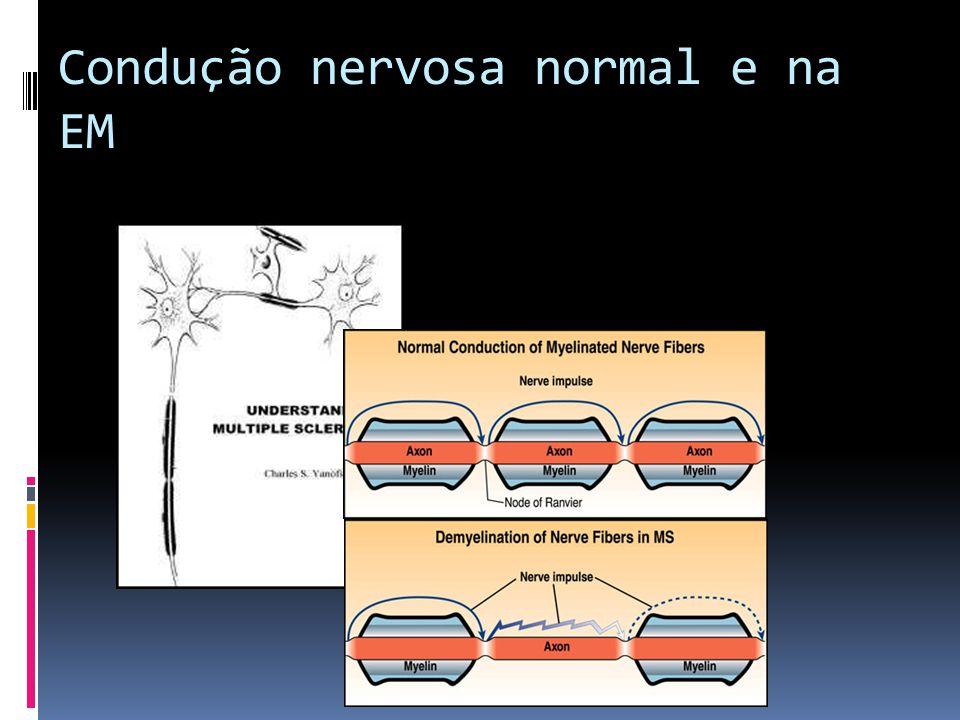 Condução nervosa normal e na EM