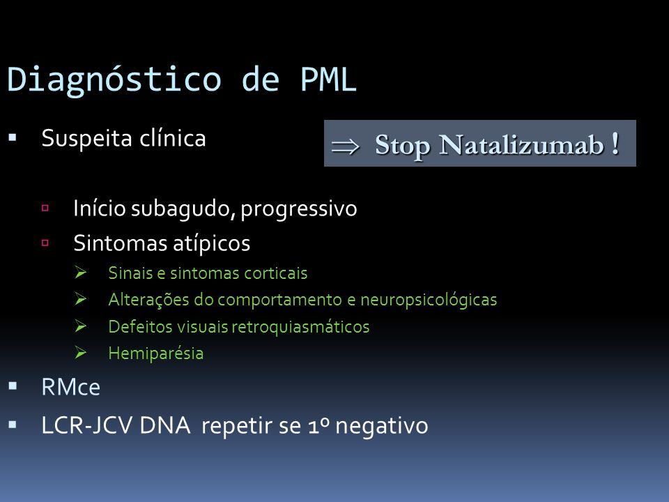 Diagnóstico de PML  Stop Natalizumab ! Suspeita clínica RMce