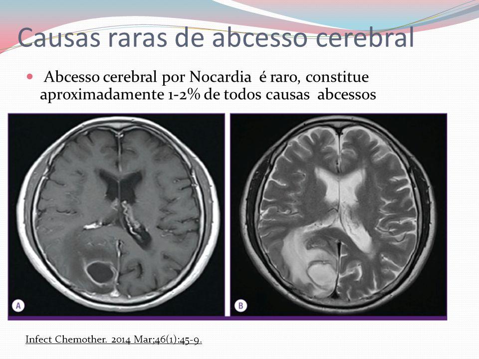 Causas raras de abcesso cerebral