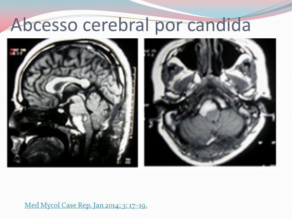 Abcesso cerebral por candida