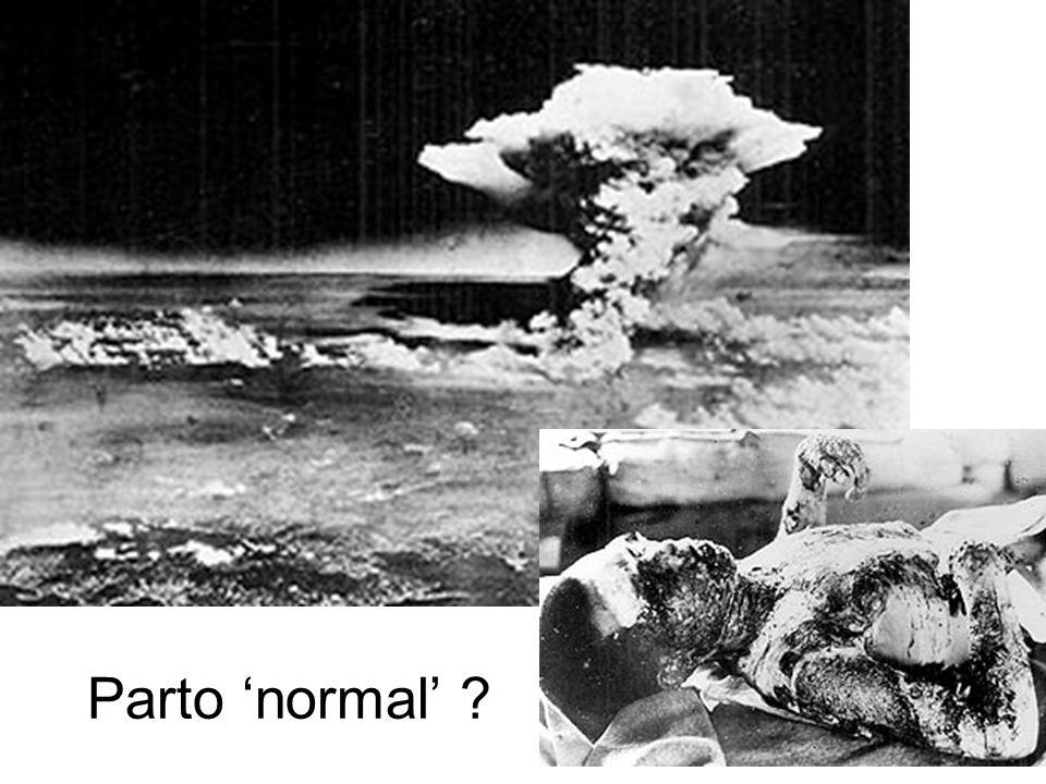 Parto 'normal'