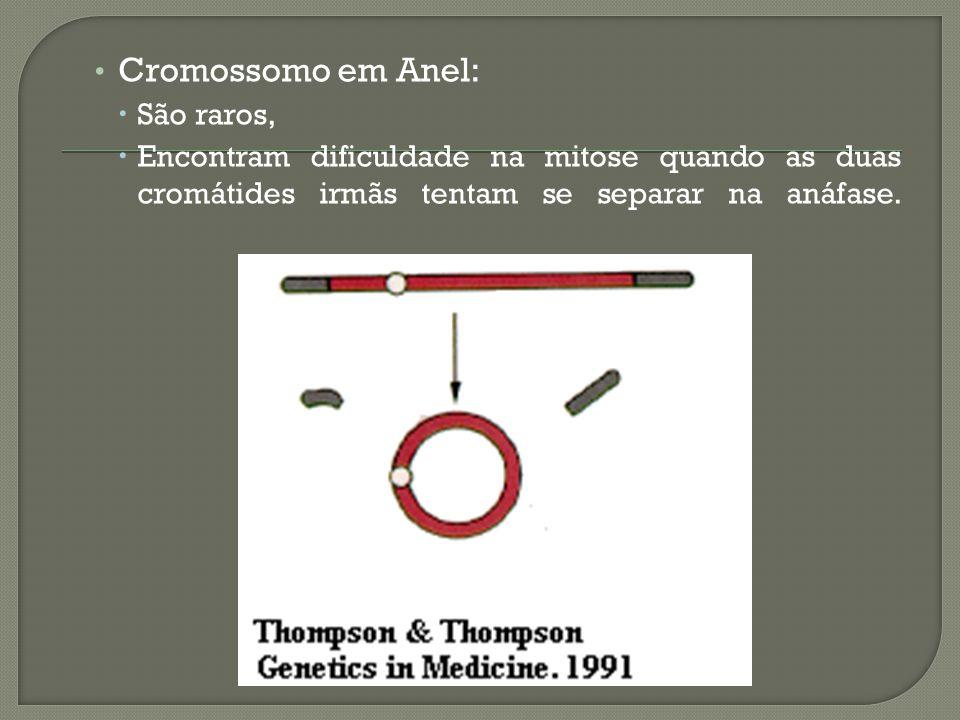 Cromossomo em Anel: São raros,
