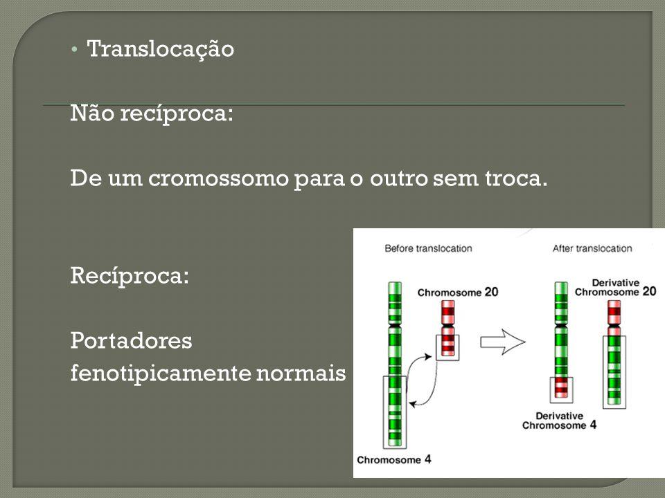 Translocação Não recíproca: De um cromossomo para o outro sem troca.