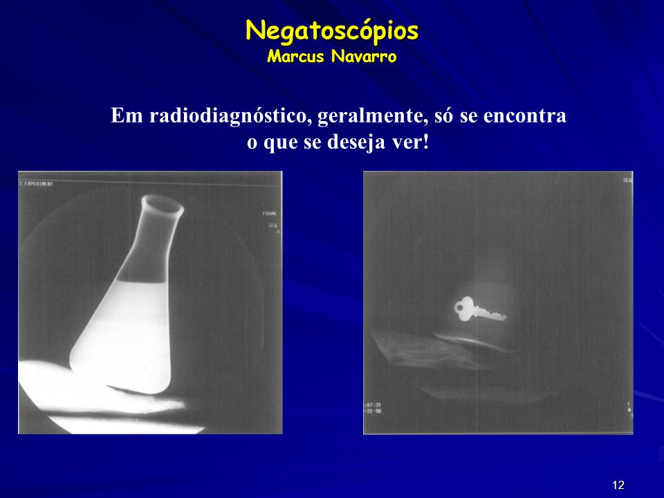 Negatoscópios Marcus Navarro