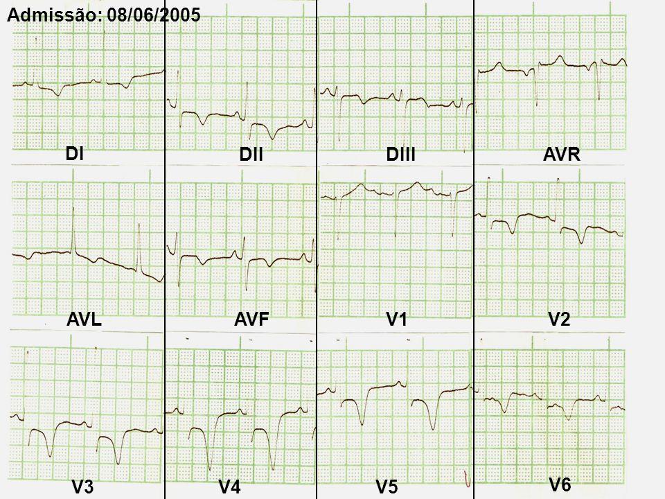 Admissão: 08/06/2005 DI DII DIII AVR AVL AVF V1 V2 V3 V4 V5 V6