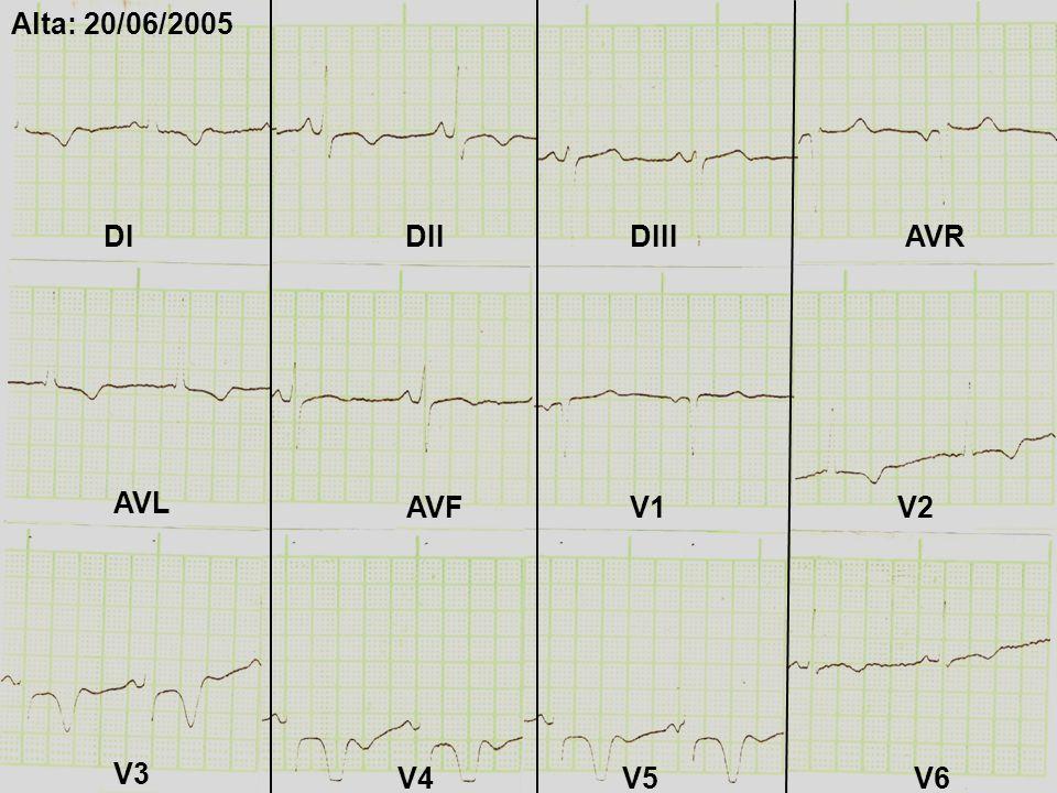 Alta: 20/06/2005 DI DII DIII AVR AVL AVF V1 V2 V3 V4 V5 V6