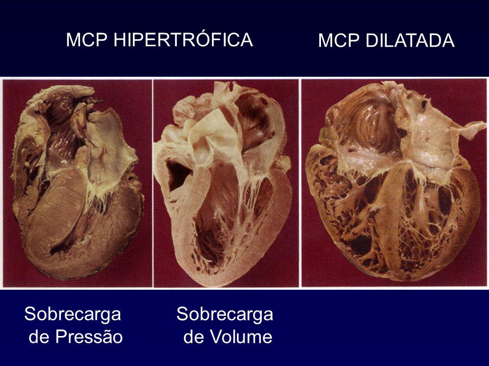 MCP HIPERTRÓFICA MCP DILATADA Sobrecarga de Pressão Sobrecarga de Volume