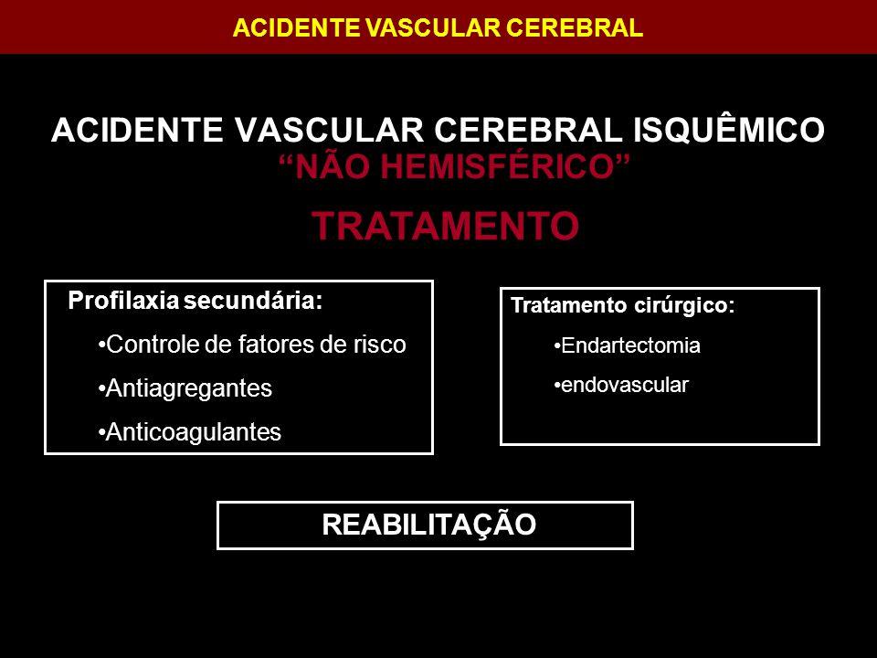 TRATAMENTO ACIDENTE VASCULAR CEREBRAL ISQUÊMICO NÃO HEMISFÉRICO