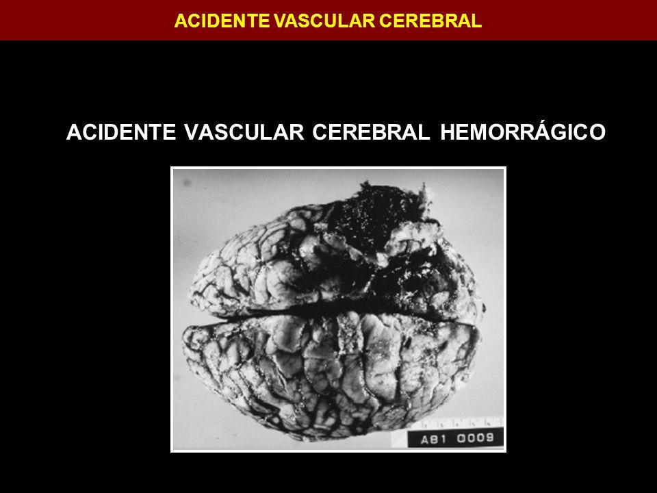 ACIDENTE VASCULAR CEREBRAL ACIDENTE VASCULAR CEREBRAL HEMORRÁGICO