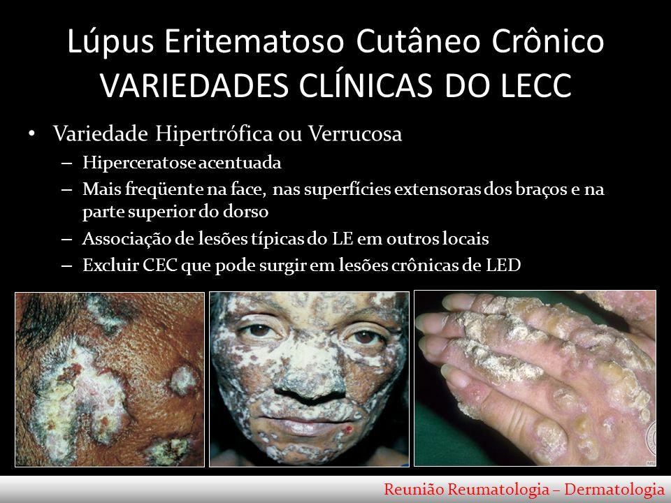 Lúpus Eritematoso Cutâneo Crônico VARIEDADES CLÍNICAS DO LECC