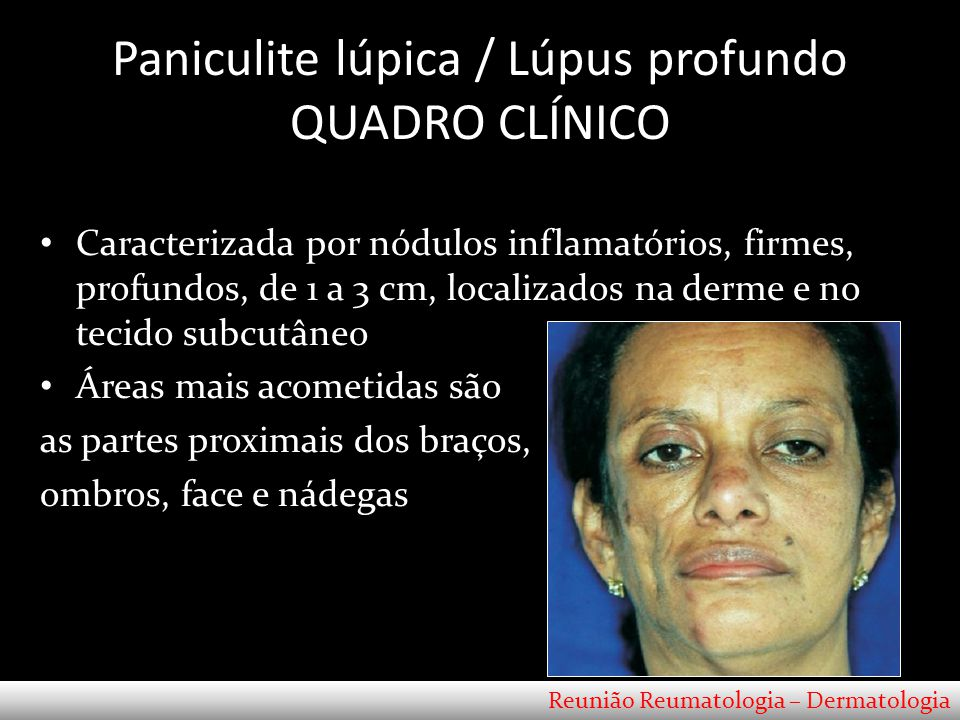 Paniculite lúpica / Lúpus profundo QUADRO CLÍNICO
