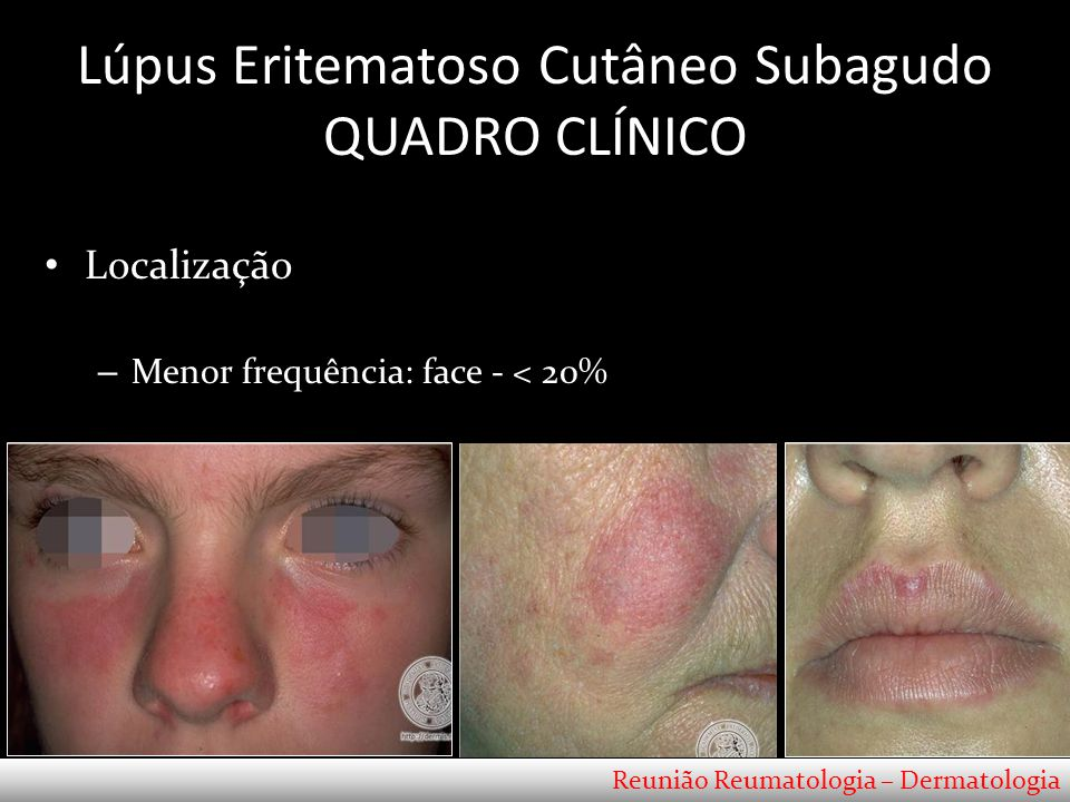 Lúpus Eritematoso Cutâneo Subagudo QUADRO CLÍNICO