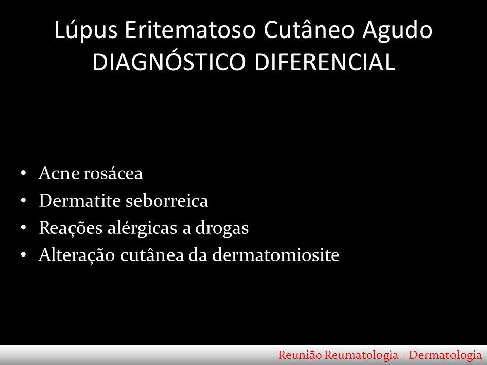 Lúpus Eritematoso Cutâneo Agudo DIAGNÓSTICO DIFERENCIAL