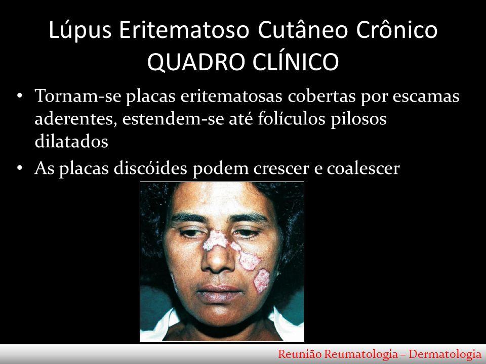 Lúpus Eritematoso Cutâneo Crônico QUADRO CLÍNICO