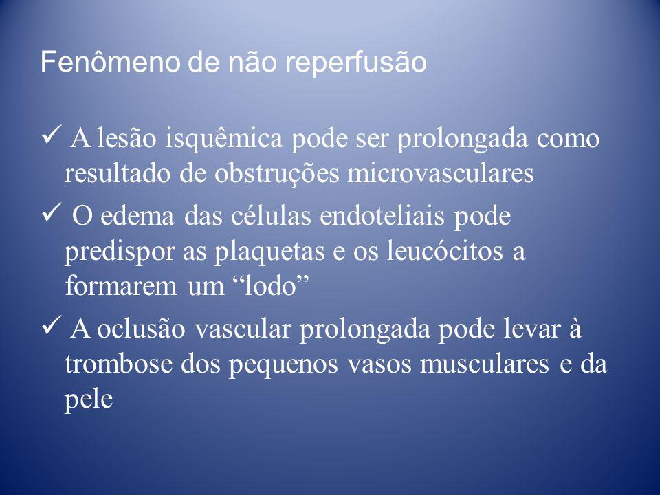 Fenômeno de não reperfusão