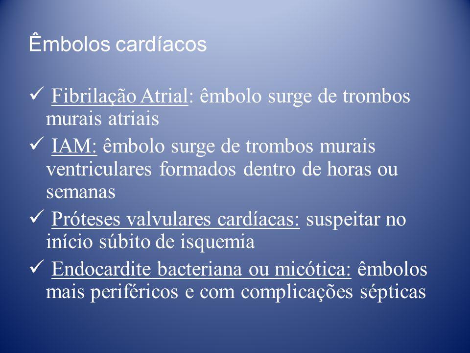Êmbolos cardíacos Fibrilação Atrial: êmbolo surge de trombos murais atriais.