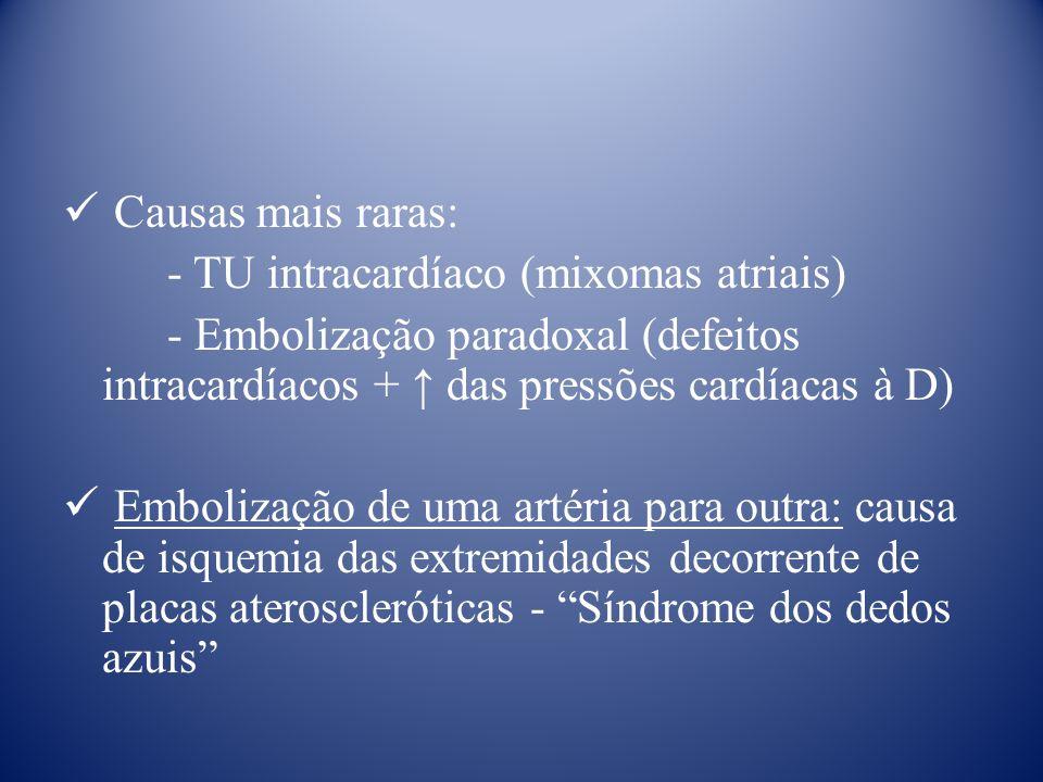 Causas mais raras: - TU intracardíaco (mixomas atriais) - Embolização paradoxal (defeitos intracardíacos + ↑ das pressões cardíacas à D)