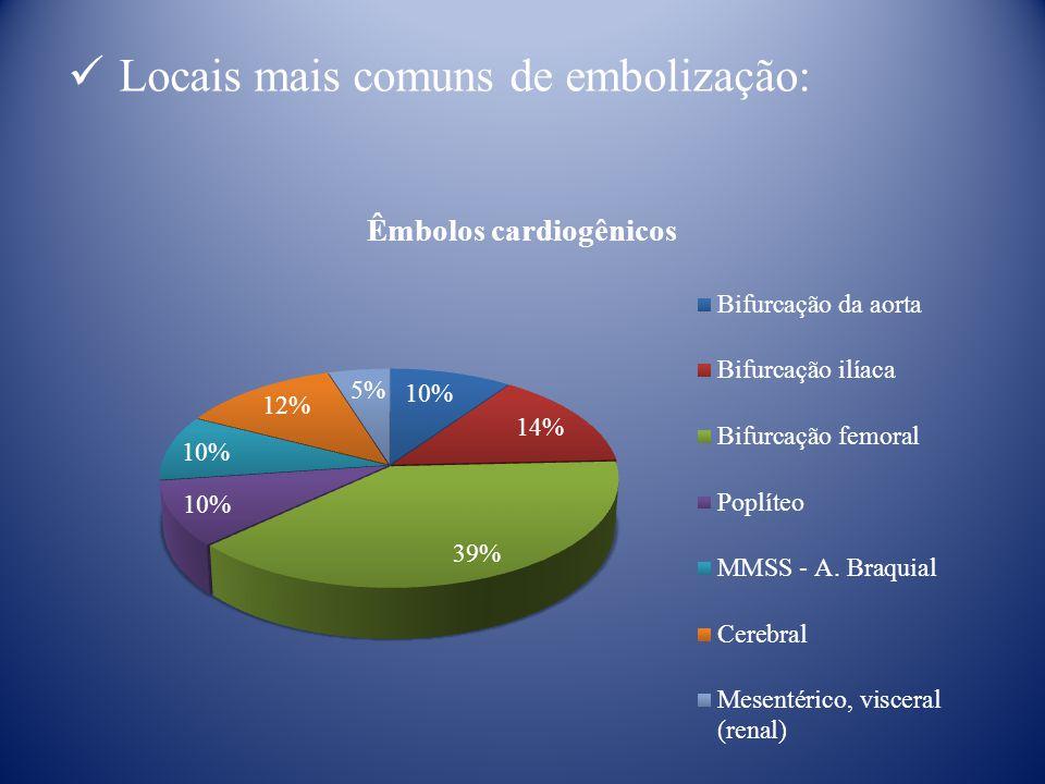 Locais mais comuns de embolização: