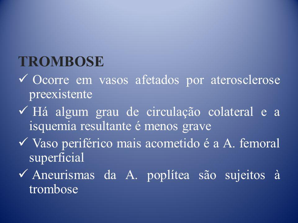 TROMBOSE Ocorre em vasos afetados por aterosclerose preexistente