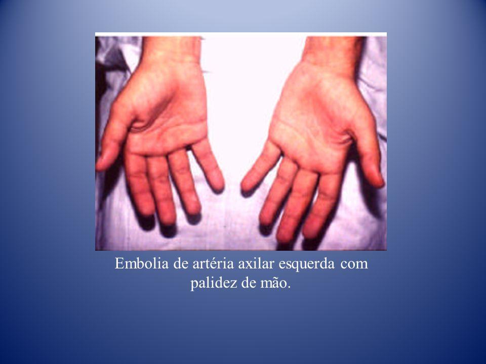 Embolia de artéria axilar esquerda com palidez de mão.