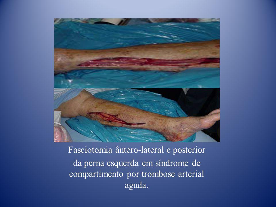 Fasciotomia ântero-lateral e posterior