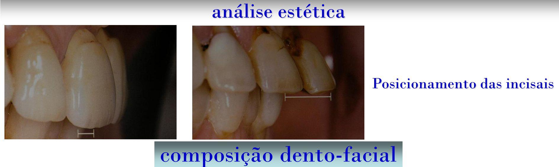 composição dento-facial