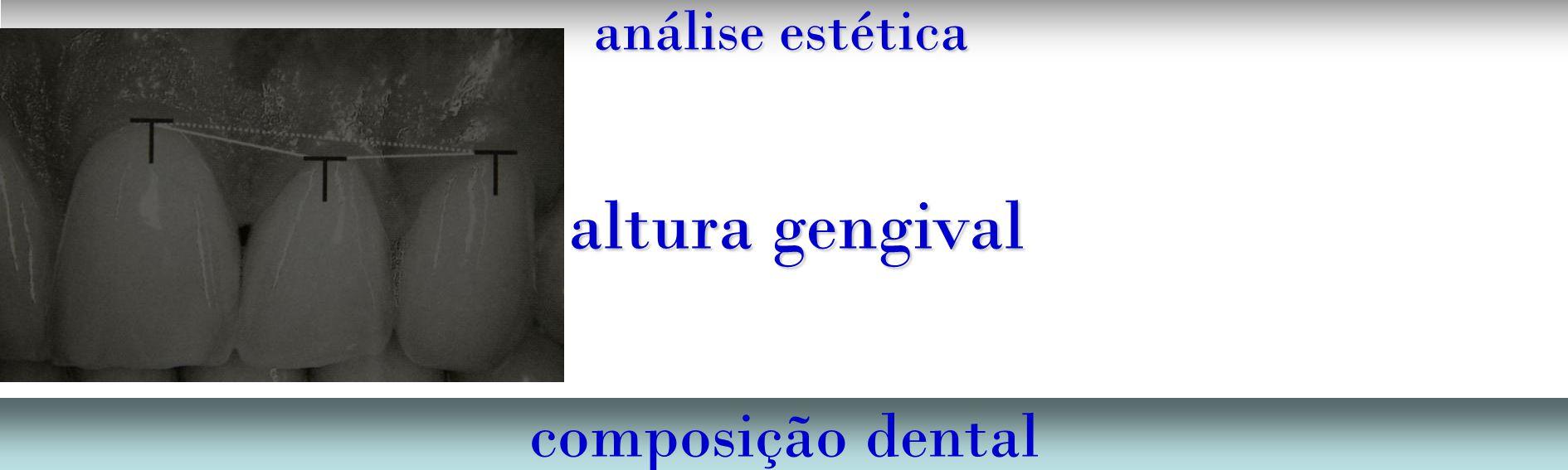 análise estética altura gengival composição dental