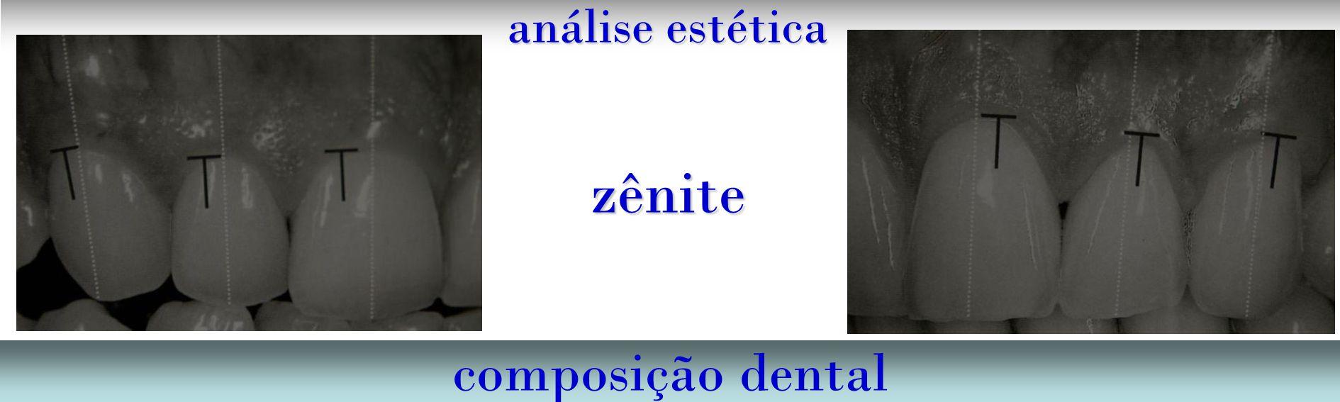 análise estética zênite composição dental