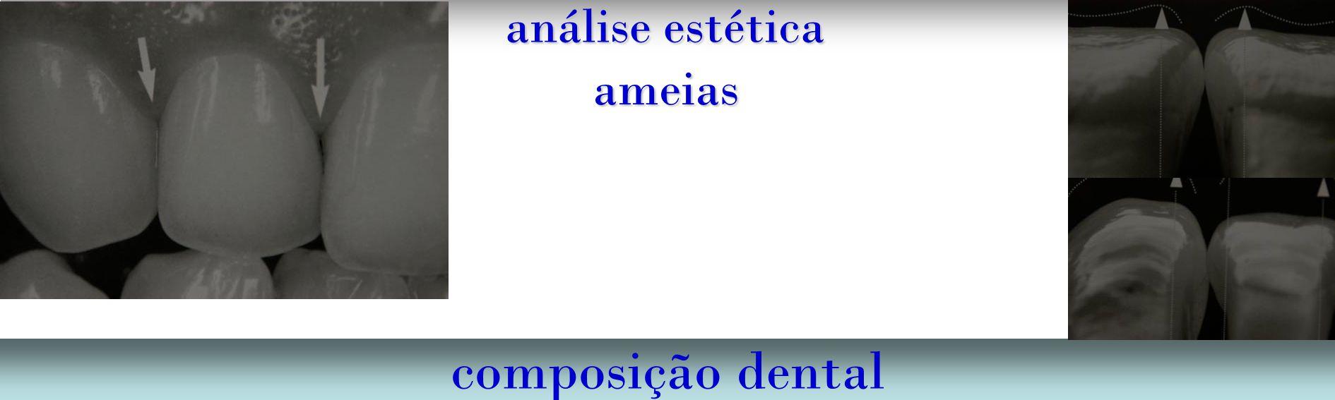 análise estética ameias composição dental