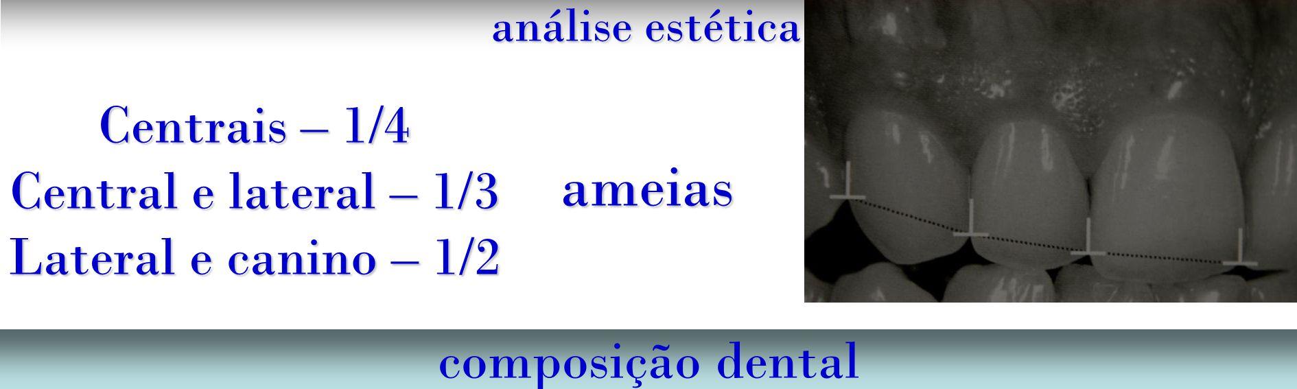 ameias Centrais – 1/4 Central e lateral – 1/3 Lateral e canino – 1/2