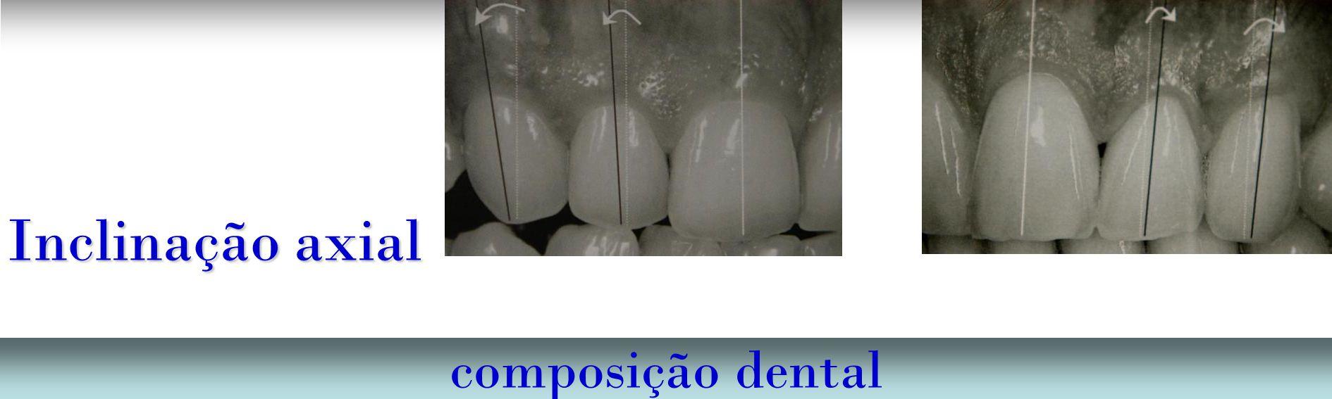 Inclinação axial composição dental