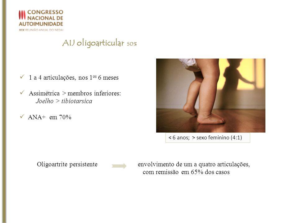 AIJ oligoarticular 50% 1 a 4 articulações, nos 1os 6 meses
