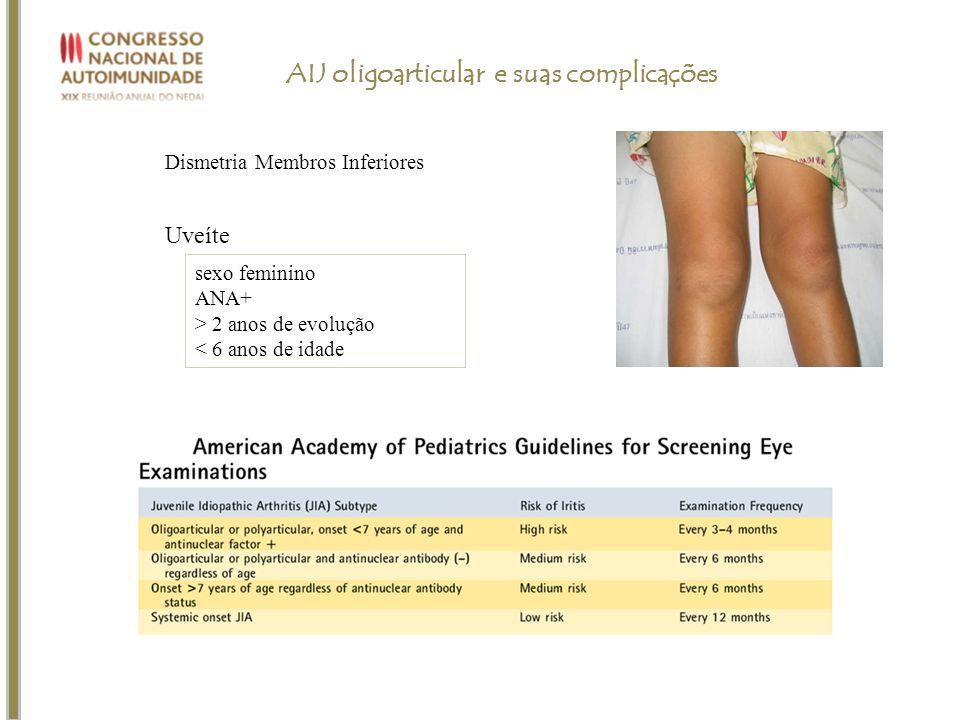 AIJ oligoarticular e suas complicações