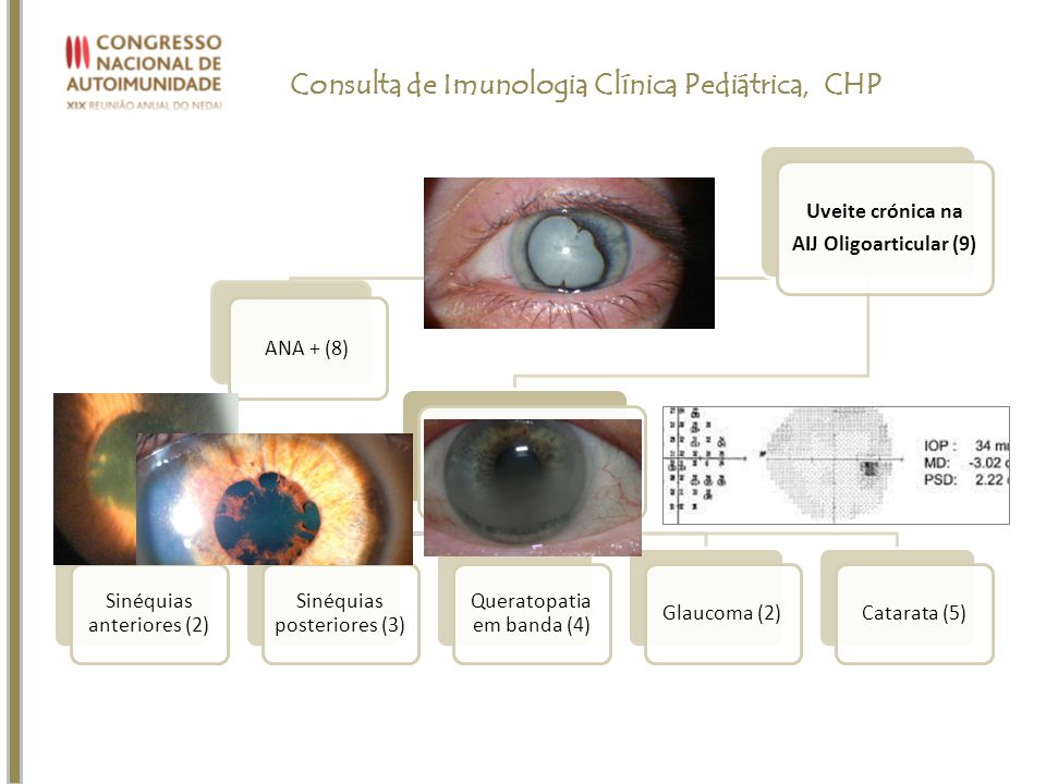Consulta de Imunologia Clínica Pediátrica, CHP