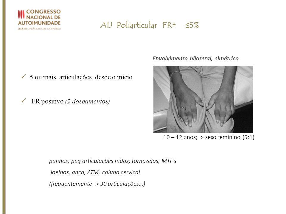AIJ Poliarticular FR+ ≤5%