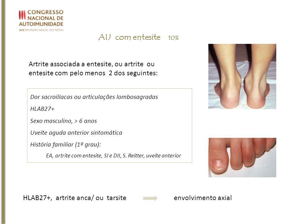 AIJ com entesite 10% Artrite associada a entesite, ou artrite ou