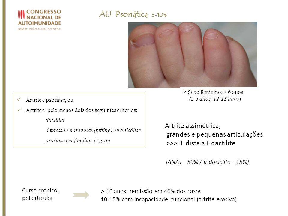AIJ Psoriática 5-10% Artrite assimétrica,