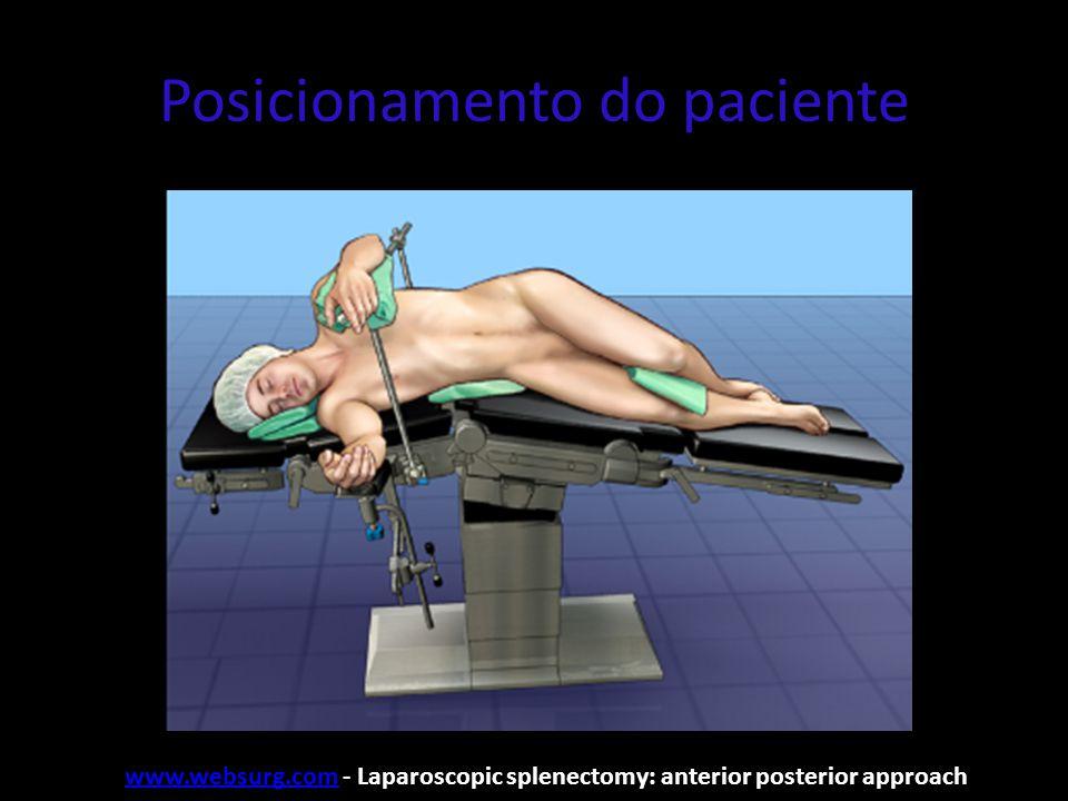 Posicionamento do paciente