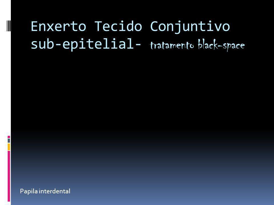 Enxerto Tecido Conjuntivo sub-epitelial- tratamento black-space