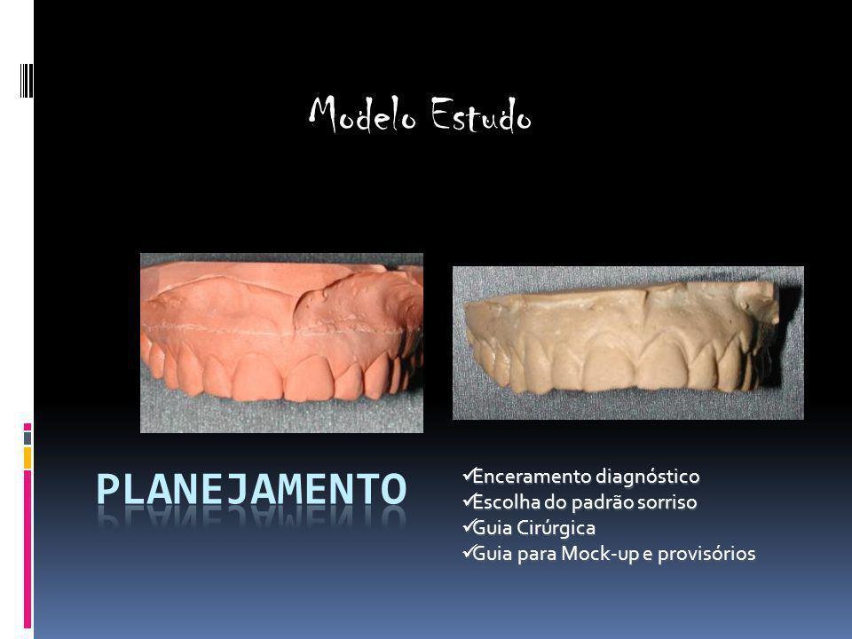 Modelo Estudo Planejamento Enceramento diagnóstico