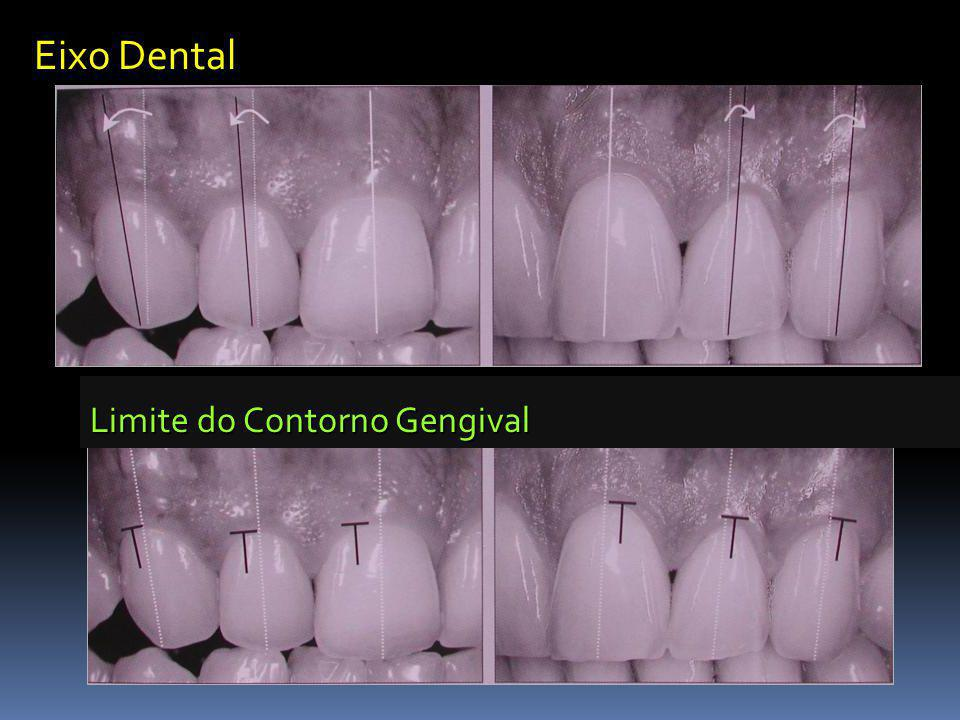 Eixo Dental Limite do Contorno Gengival