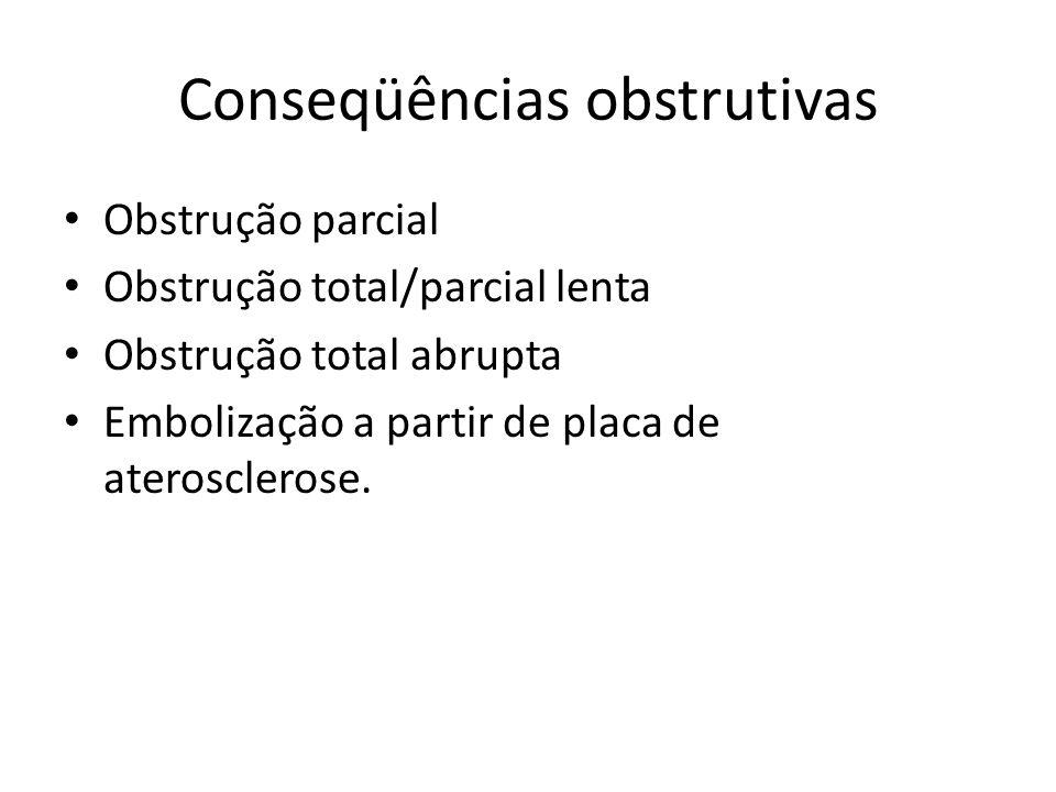 Conseqüências obstrutivas