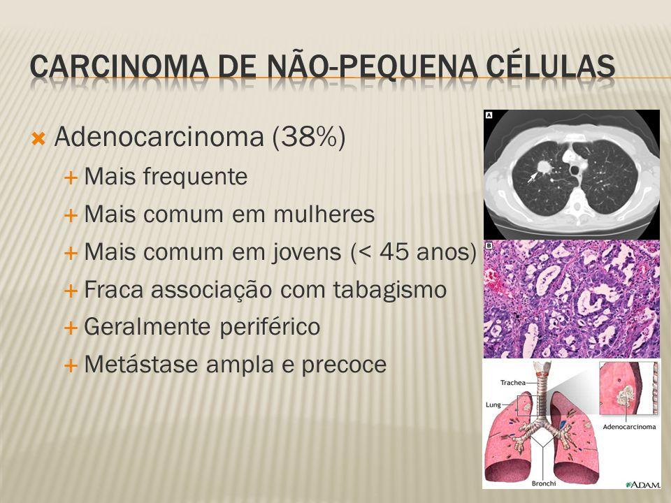 Carcinoma de não-pequena células